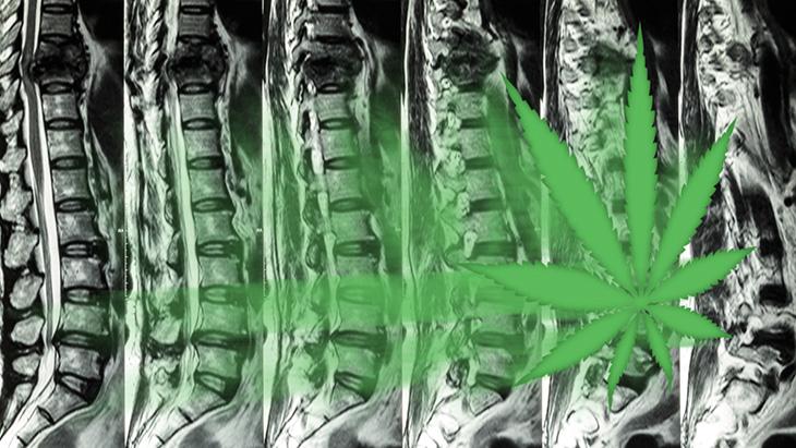 Enquête: De nombreux patients souffrant de douleurs liées à la colonne vertébrale se tournent vers le CBD